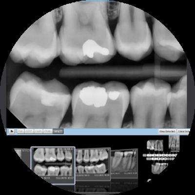 Tecnologie Studio Dentistico Athena Brescia Calcinato